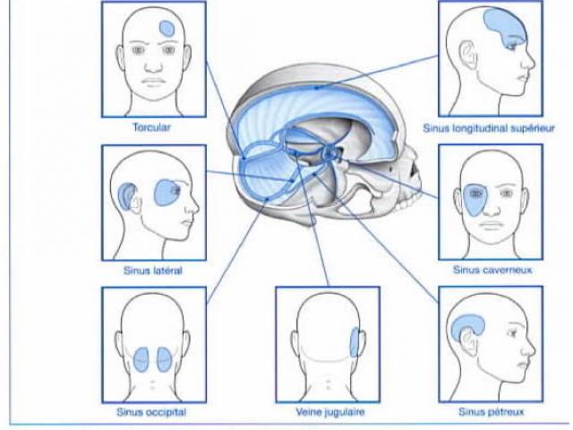 Maux de tête, Migraines, Céphalées, Quelles sont les symptômes et les solutions en ostéopathie?